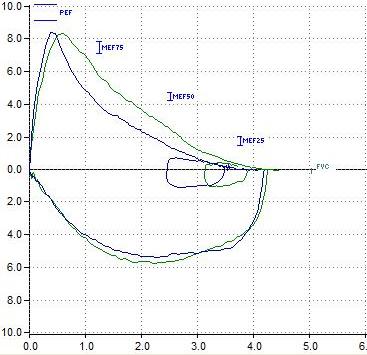 Figure 1 (B) InfoPFTec