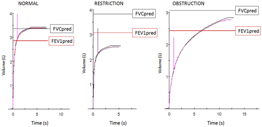 Figure 1: Examples of Normal, Restrictive and Obstructive maneuvers of forced maximal expiration. Vertical line indicates the first second after exhalation begins. Predicted values (mean) for FVC (black line) and FEV1 (red line) are plotted.